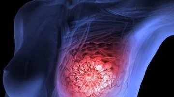 11 Alkaline Foods That Reduce The Risk Of Breast Cancer In Women